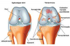arthrosis kezelés dimexidum vélemények
